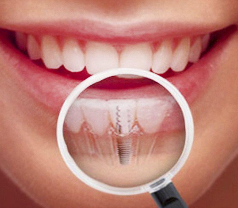 Implantología en la Clínica dental Vargas Ridao en Vigo