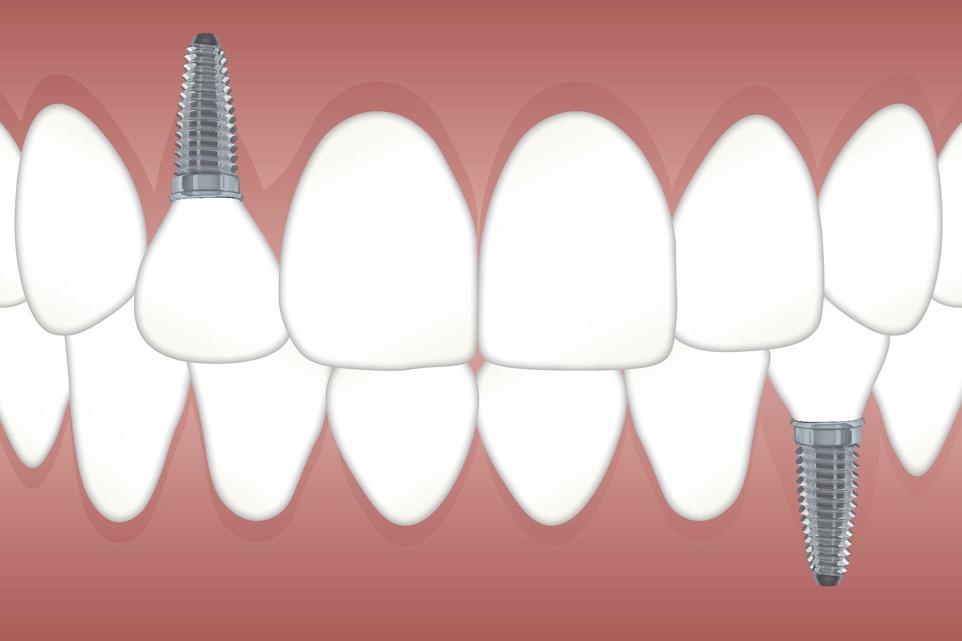 Si se quiere una buena salud bucodental es importante reponer los dientes perdidos a la mayor brevedad posible