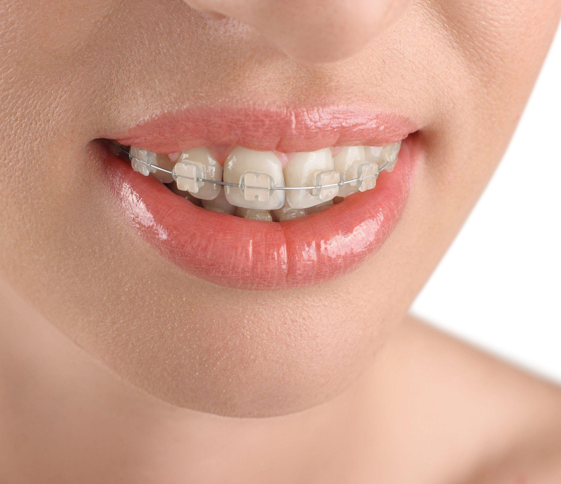 ortodoncia vigo
