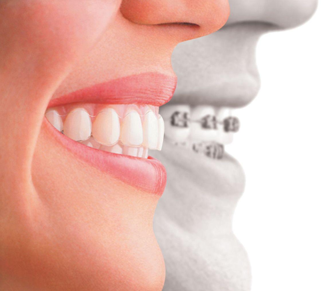 ortodoncia antes y despiés vigo
