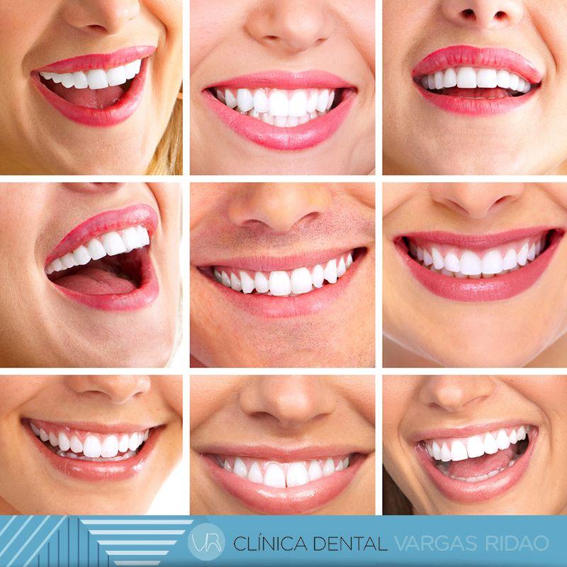 blanqueamiento dental vigo