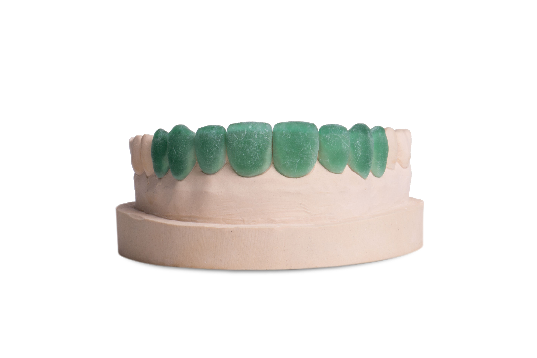 Carillas Dentales - Técnica de Prototipo