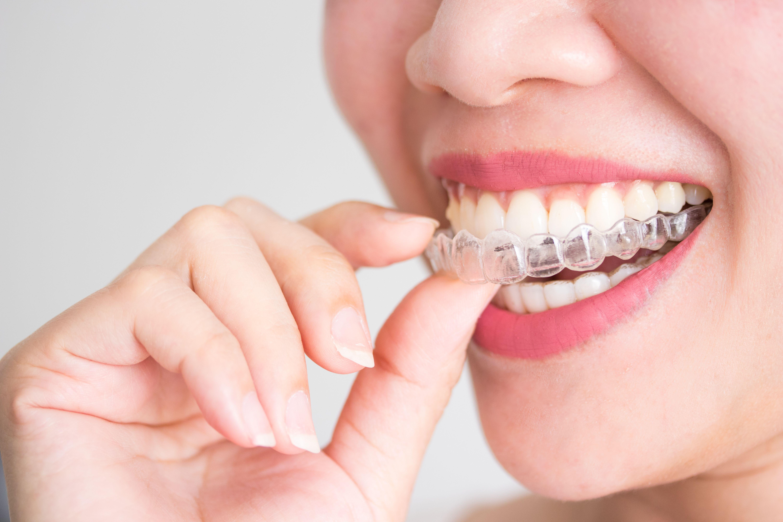 mujer utilizando ortodoncia invisible en vigo