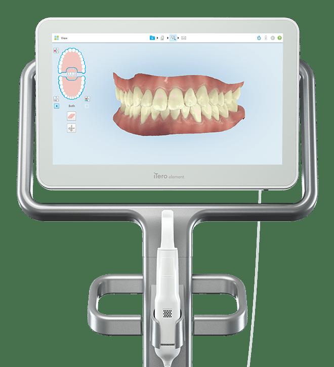 iTero escaner intraoral