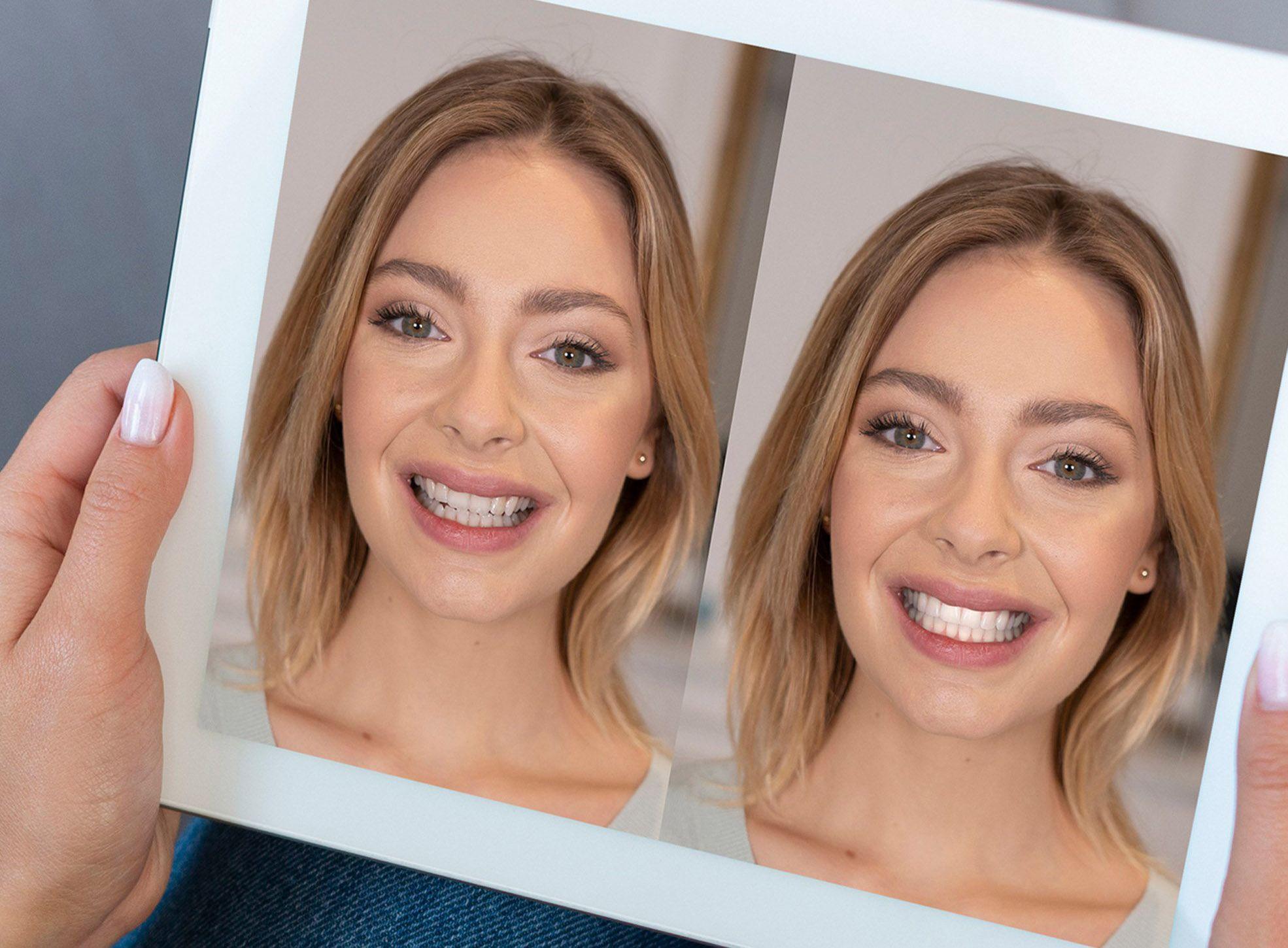 Las simulaciones virtuales de sonrisa en Vigo permiten conocer el resultado definitivo de un tratamiento dental incluso antes de iniciarlo