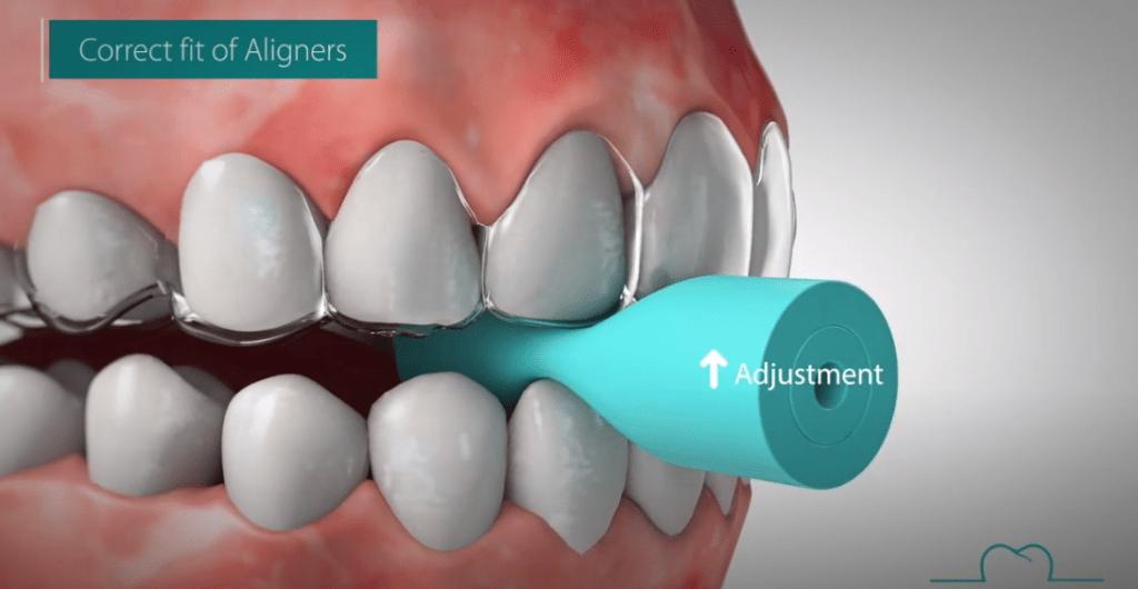 chewies o mordedores para ortodoncia invisible vigo