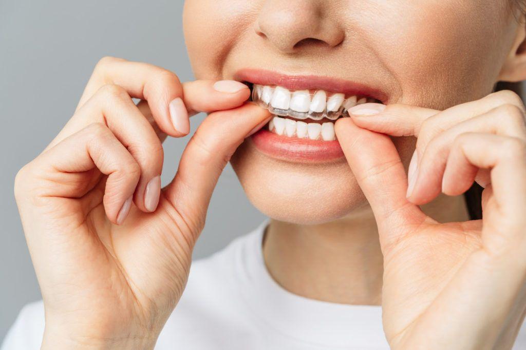 ortodoncia invisible en Vigo es la solución ideal si quieres un tratamiento discreto y estético