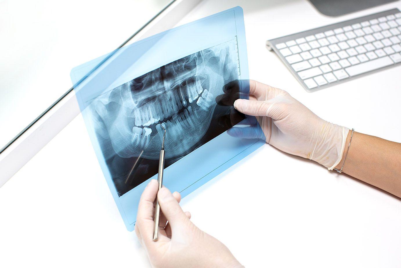 En la endodoncia se extrae el tejido pulpar y se sustituye por material inerte