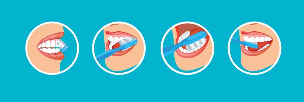 técnica de cepillado para prevenir enfermedades periodontales