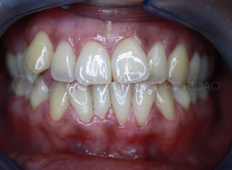 ortodoncia 1 – antes