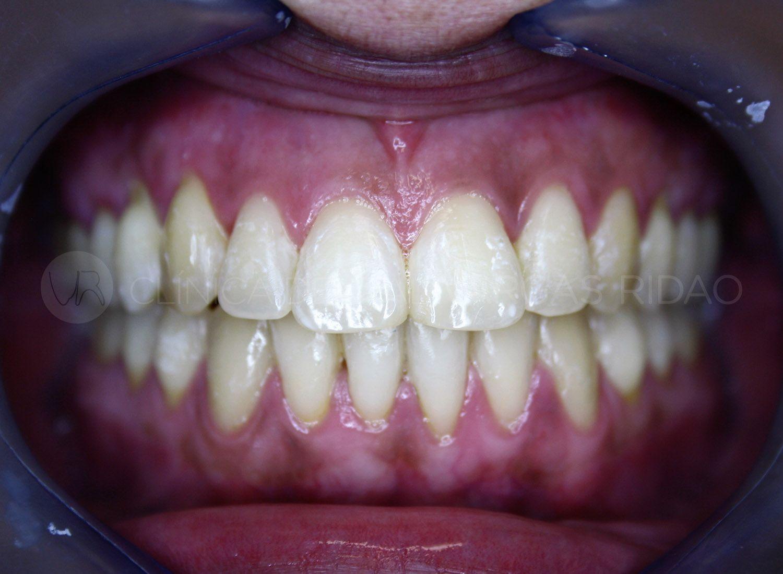 ortodoncia 2 – despues