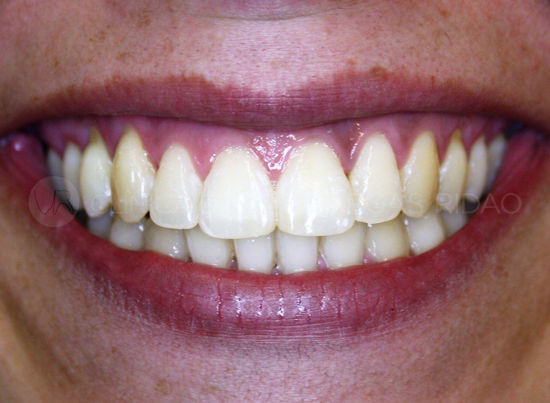 ortodoncia 3 – despues
