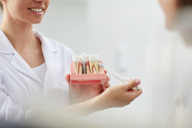 Con los implantes dentales en un solo día en Vigo de Vargas Ridao se recupera la sonrisa en una sola cita